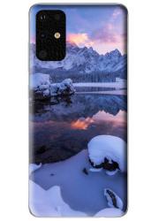 Coque 360° Samsung Galaxy S20 plus personnalisée