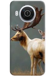 Coque 360° Nokia X20 personnalisée